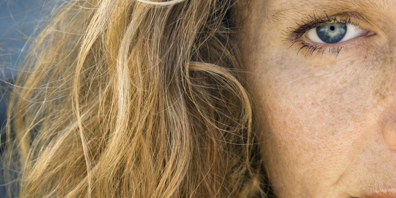 Laser for skin rejuvenation